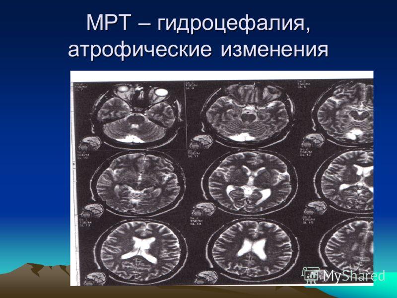МРТ – гидроцефалия, атрофические изменения