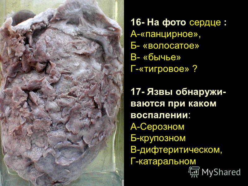 16- На фото сердце : А-«панцирное», Б- «волосатое» В- «бычье» Г-«тигровое» ? 17- Язвы обнаружи- ваются при каком воспалении: А-Серозном Б-крупозном В-дифтеритическом, Г-катаральном