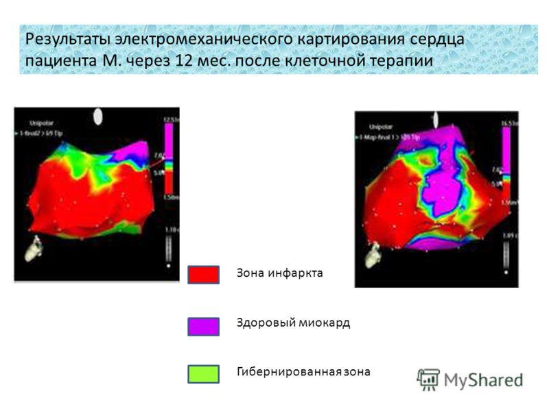 Зона инфаркта Здоровый миокард Гибернированная зона Результаты электромеханического картирования сердца пациента М. через 12 мес. после клеточной терапии