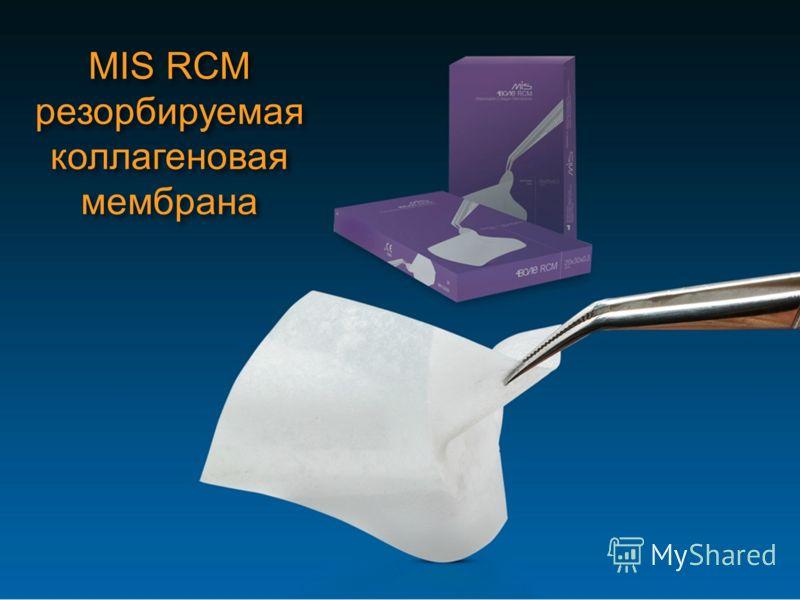 MIS RCM резорбируемая коллагеновая мембрана MIS RCM резорбируемая коллагеновая мембрана