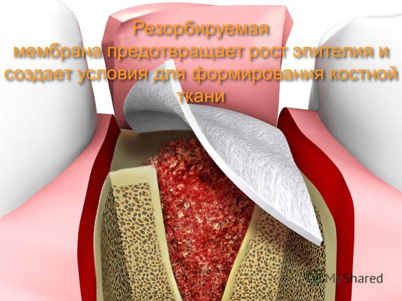 Резорбируемая мембрана предотвращает рост эпителия и создает условия для формирования костной ткани Резорбируемая мембрана предотвращает рост эпителия и создает условия для формирования костной ткани