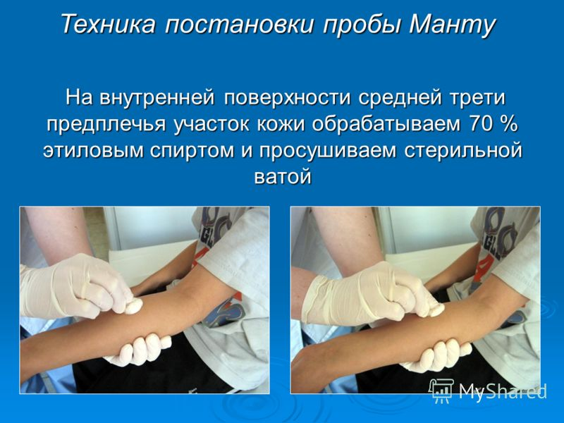 На внутренней поверхности средней трети предплечья участок кожи обрабатываем 70 % этиловым спиртом и просушиваем стерильной ватой На внутренней поверхности средней трети предплечья участок кожи обрабатываем 70 % этиловым спиртом и просушиваем стериль