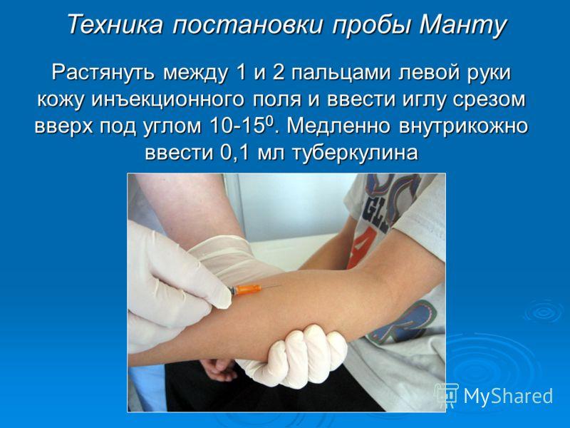 Растянуть между 1 и 2 пальцами левой руки кожу инъекционного поля и ввести иглу срезом вверх под углом 10-15 0. Медленно внутрикожно ввести 0,1 мл туберкулина Техника постановки пробы Манту