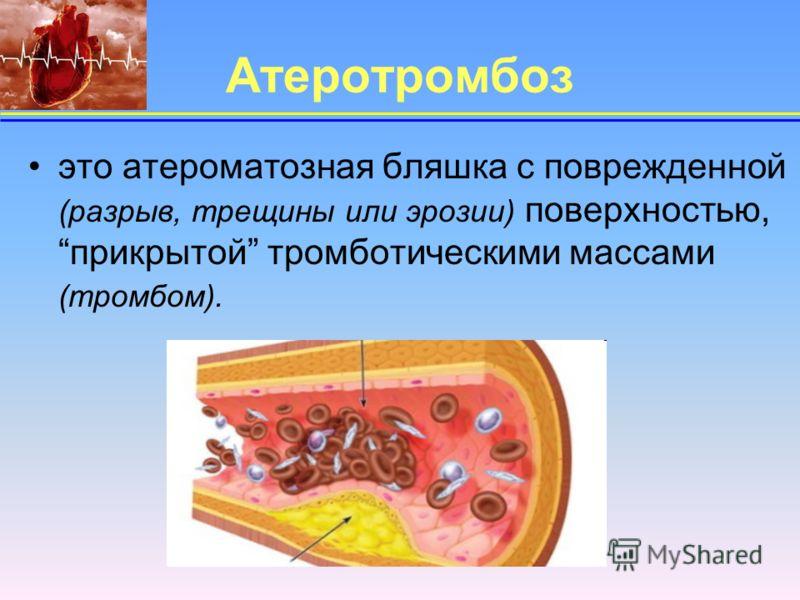 Атеротромбоз это атероматозная бляшка с поврежденной (разрыв, трещины или эрозии) поверхностью, прикрытой тромботическими массами (тромбом).