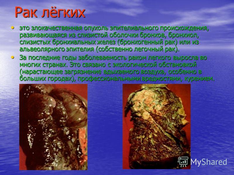Рак лёгких это злокачественная опухоль эпителиального происхождения, развивающаяся из слизистой оболочки бронхов, бронхиол, слизистых бронхиальных желез (бронхогенный рак) или из альвеолярного эпителия (собственно легочный рак). это злокачественная о