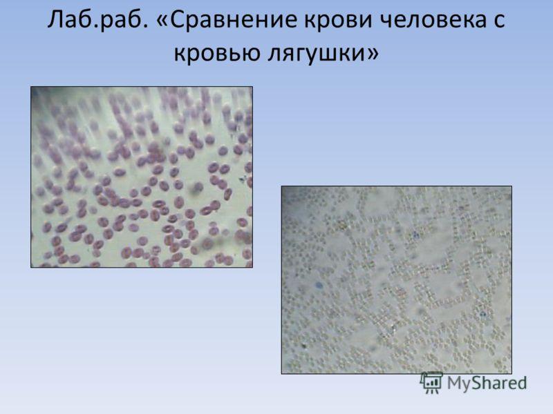Лаб.раб. «Сравнение крови человека с кровью лягушки»