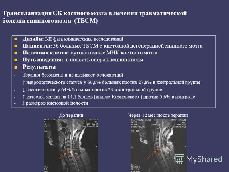 Трансплантация СК костного мозга в лечении травматической болезни спинного мозга (ТБСМ) Дизайн: I-II фаза клинических исследований Пациенты: 36 больных ТБСМ с кистозной дегенерацией спинного мозга Источник клеток: аутологичные МНК костного мозга Путь