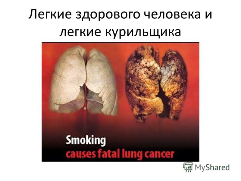 Легкие здорового человека и легкие курильщика