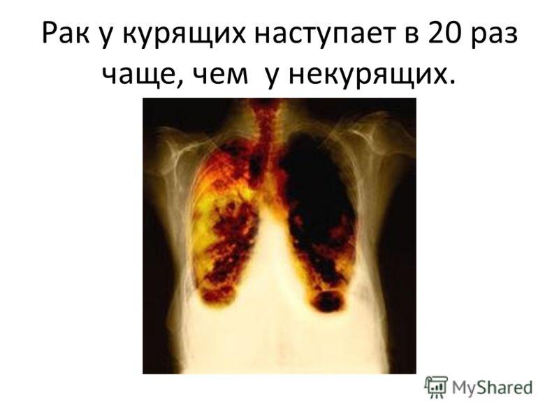 Рак у курящих наступает в 20 раз чаще, чем у некурящих.