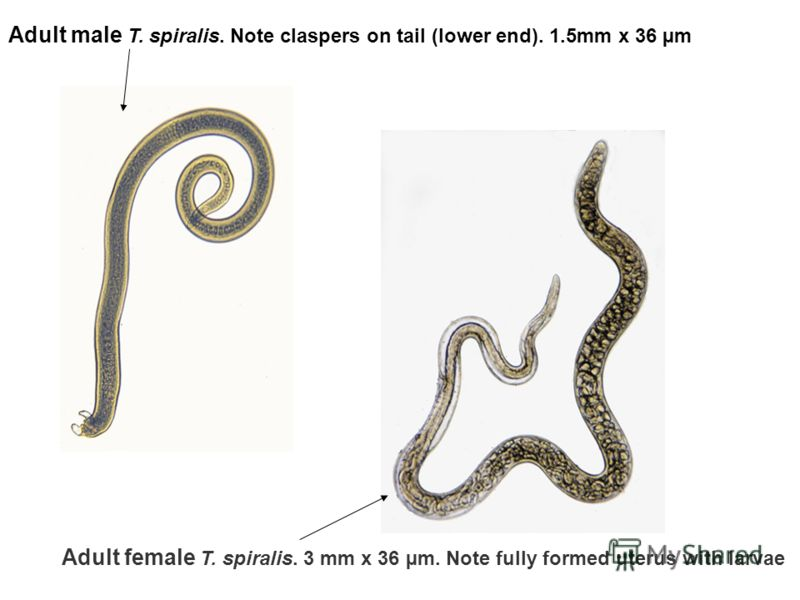 Adult male T. spiralis. Note claspers on tail (lower end). 1.5mm x 36 µm Adult female T. spiralis. 3 mm x 36 µm. Note fully formed uterus with larvae