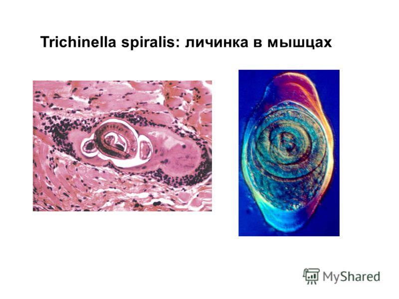 Trichinella spiralis: личинка в мышцах