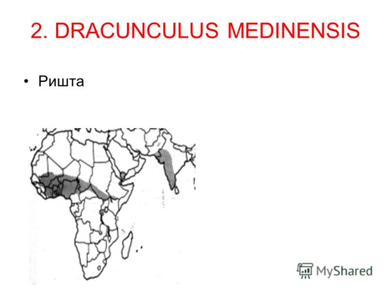 2. DRACUNCULUS MEDINENSIS Ришта