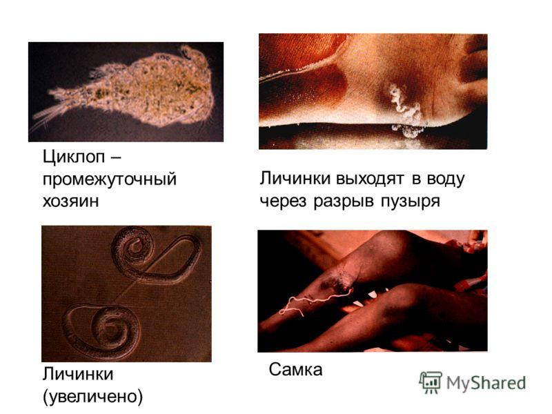 Циклоп – промежуточный хозяин Личинки (увеличено) Личинки выходят в воду через разрыв пузыря Самка