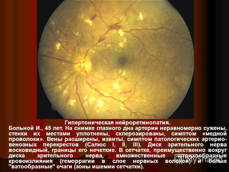 Гипертоническая нейроретинопатия. Больной И., 45 лет. На снимке глазного дна артерии неравномерно сужены, стенки их местами уплотнены, склерозированы, симптом «медной проволоки». Вены расширены, извиты, симптом патологических артерио- венозных перекр
