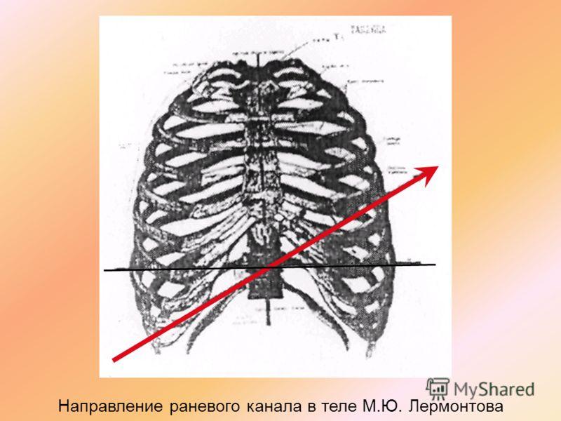 Направление раневого канала в теле М.Ю. Лермонтова