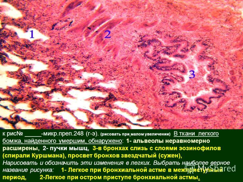 к рис _____-микр.преп.248 (г-э). (рисовать при малом увеличении) В ткани легкого бомжа, найденного умершим, обнаружено: 1- альвеолы неравномерно расширены, 2- пучки мышц, 3-в бронхах слизь с слоями эозинофилов (спирали Куршмана), просвет бронхов звез