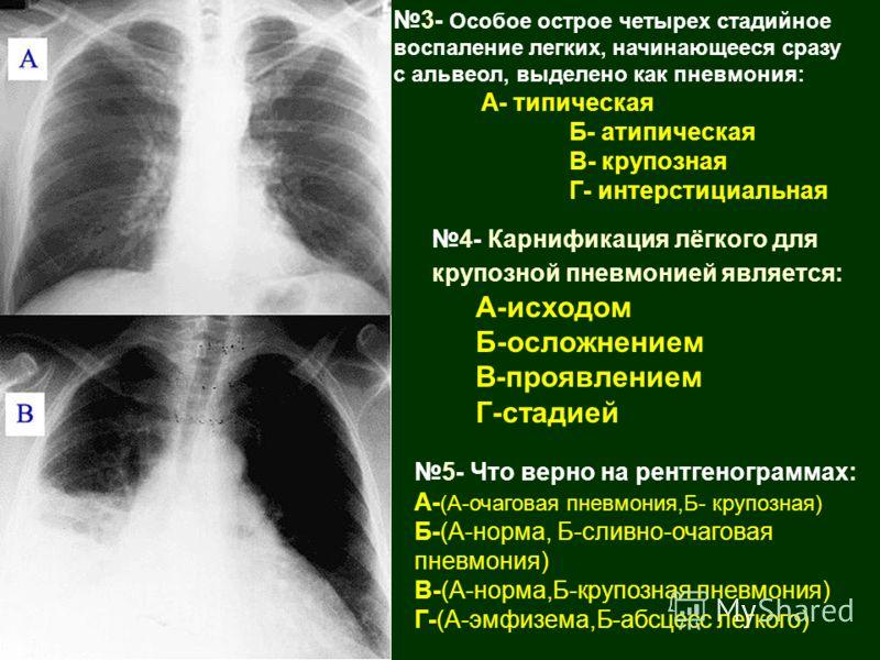 3- Особое острое четырех стадийное воспаление легких, начинающееся сразу с альвеол, выделено как пневмония: А- типическая Б- атипическая В- крупозная Г- интерстициальная 4- Карнификация лёгкого для крупозной пневмонией является: А-исходом Б-осложнени
