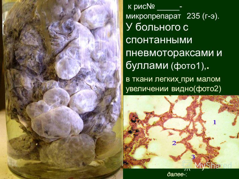 к рис _____- микропрепарат 235 (г-э). У больного с спонтанными пневмотораксами и буллами (фото1),. в ткани легких при малом увеличении видно(фото2) далее-: