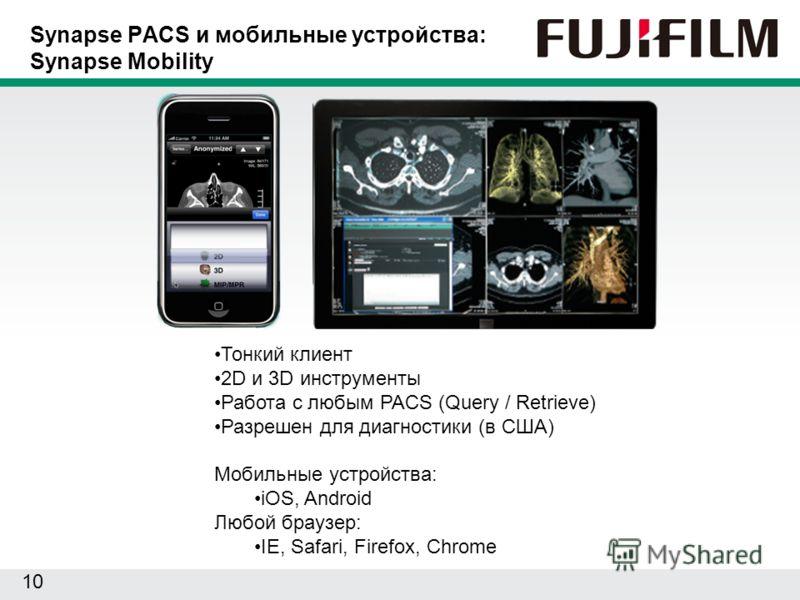 10 Synapse PACS и мобильные устройства: Synapse Mobility Тонкий клиент 2D и 3D инструменты Работа с любым PACS (Query / Retrieve) Разрешен для диагностики (в США) Мобильные устройства: iOS, Android Любой браузер: IE, Safari, Firefox, Chrome