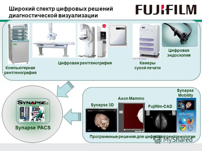 Широкий спектр цифровых решений диагностической визуализации ® Synapse PACS Компьютерная рентгенография Цифровая рентгенографияКамеры сухой печати Цифровая эндоскопия Synapse 3D Axon Mammo Fujifilm-CAD Synapse Mobility Программные решения для цифрово