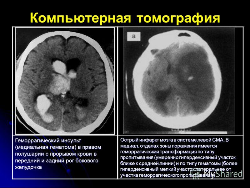 Компьютерная томография Геморрагический инсульт (медиальная гематома) в правом полушарии с прорывом крови в передний и задний рог бокового желудочка Острый инфаркт мозга в системе левой СМА. В медиал. отделах зоны поражения имеется геморрагическая тр