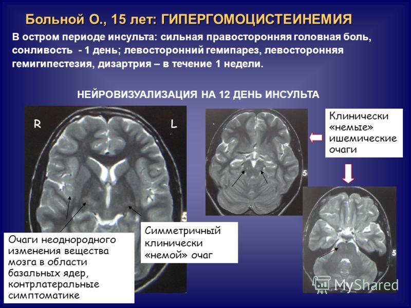 Больной О., 15 лет: ГИПЕРГОМОЦИСТЕИНЕМИЯ В остром периоде инсульта: сильная правосторонняя головная боль, сонливость - 1 день; левосторонний гемипарез, левосторонняя гемигипестезия, дизартрия – в течение 1 недели. Клинически «немые» ишемические очаги