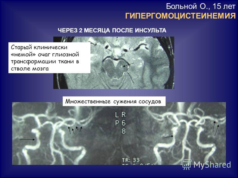 Больной О., 15 лет ГИПЕРГОМОЦИСТЕИНЕМИЯ ЧЕРЕЗ 2 МЕСЯЦА ПОСЛЕ ИНСУЛЬТА Старый клинически «немой» очаг глиозной трансформации ткани в стволе мозга Множественные сужения сосудов