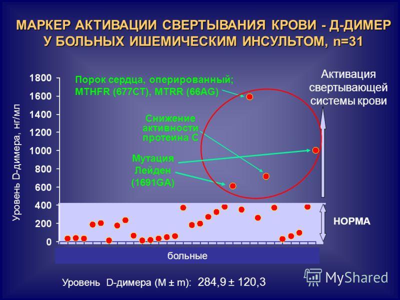 МАРКЕР АКТИВАЦИИ СВЕРТЫВАНИЯ КРОВИ - Д-ДИМЕР У БОЛЬНЫХ ИШЕМИЧЕСКИМ ИНСУЛЬТОМ, n=31 Уровень D-димера, нг/мл НОРМА Активация свертывающей системы крови больные Уровень D-димера (М ± m): 284,9 ± 120,3 Мутация Лейден (1691GA) Порок сердца, оперированный;