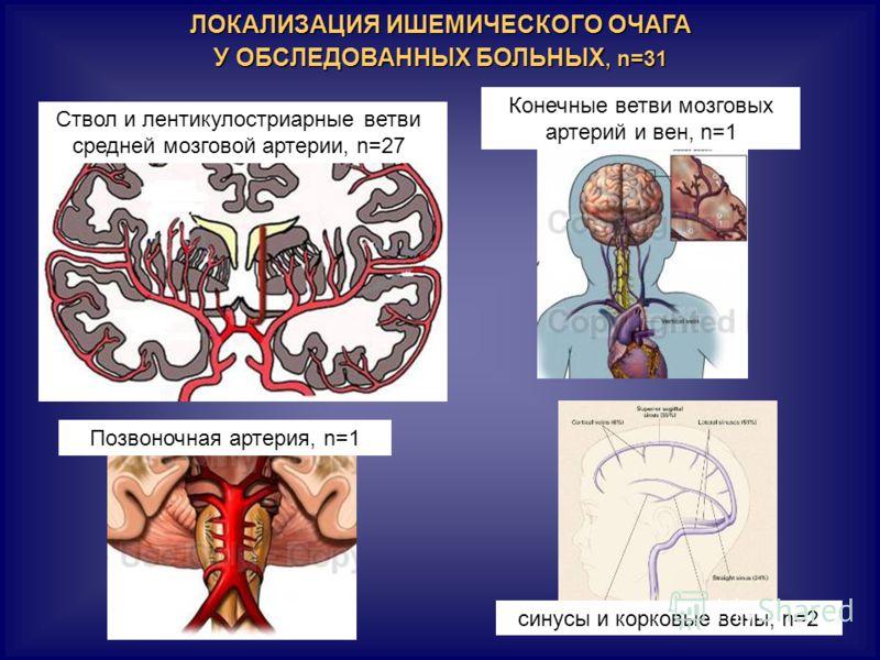 ЛОКАЛИЗАЦИЯ ИШЕМИЧЕСКОГО ОЧАГА У ОБСЛЕДОВАННЫХ БОЛЬНЫХ, n=31 Ствол и лентикулостриарные ветви средней мозговой артерии, n=27 Конечные ветви мозговых артерий и вен, n=1 Позвоночная артерия, n=1 синусы и корковые вены, n=2