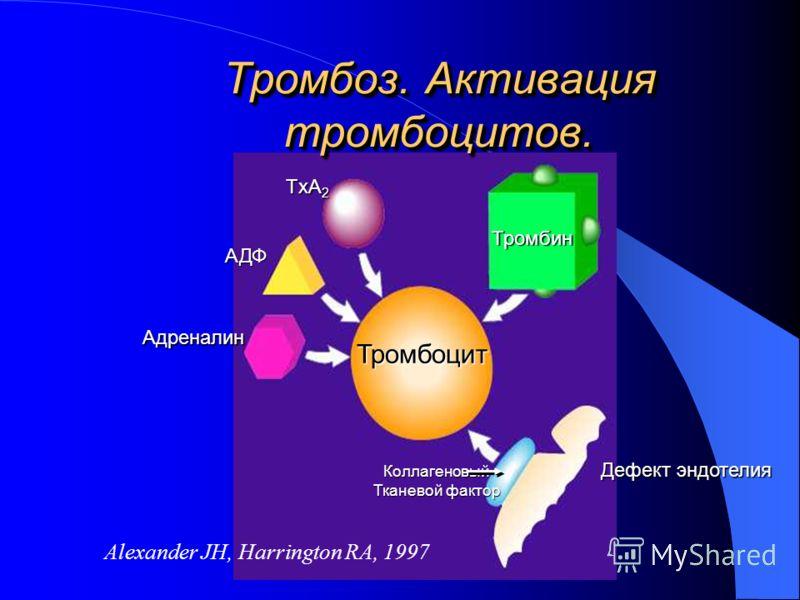 Тромбоз. Активация тромбоцитов. Тромбоцит Коллагеновый Тканевой фактор Тромбин TxA 2 АДФ Адреналин Дефект эндотелия Дефект эндотелия Alexander JH, Harrington RA, 1997