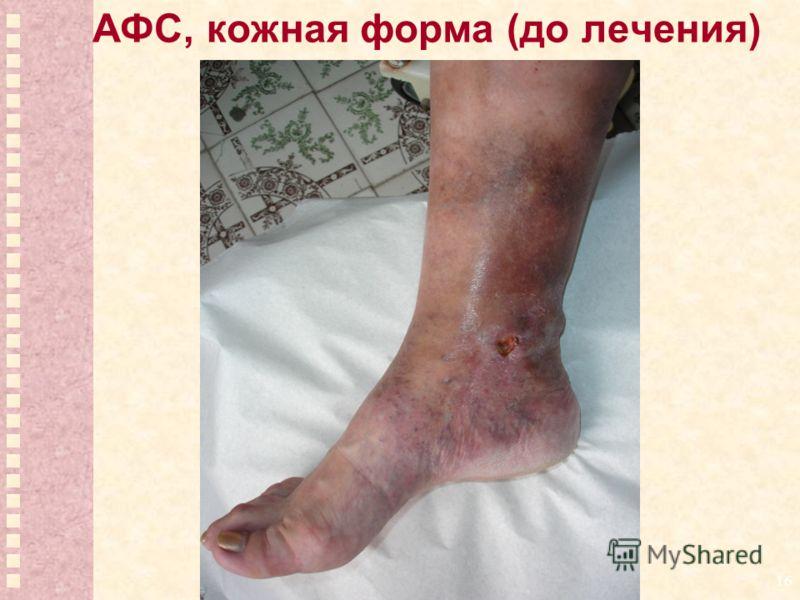16 АФС, кожная форма (до лечения)