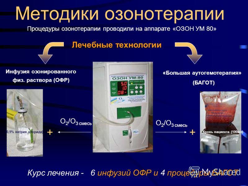 Методики озонотерапии Процедуры озонотерапии проводили на аппарате «ОЗОН УМ 80» «Большая аутогемотерапия» (БАГОТ) Инфузия озонированного физ. раствора (ОФР) Курс лечения - 6 инфузий ОФР и 4 процедуры БАГОТ (0,9% натрия хлорида)Кровь пациента (100мл)