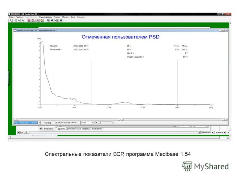 Спектральные показатели ВСР, программа Medibase 1.54