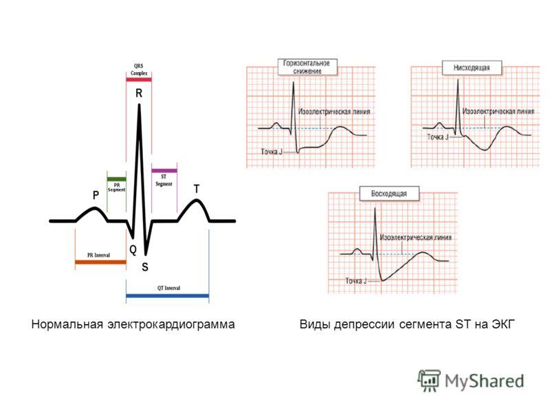 Нормальная электрокардиограмма Виды депрессии сегмента ST на ЭКГ
