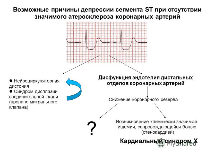Нейроциркуляторная дистония Синдром дисплазии соединительной ткани (пролапс митрального клапана) Снижение коронарного резерва Кардиальный синдром X Дисфункция эндотелия дистальных отделов коронарных артерий Возможные причины депрессии сегмента ST при