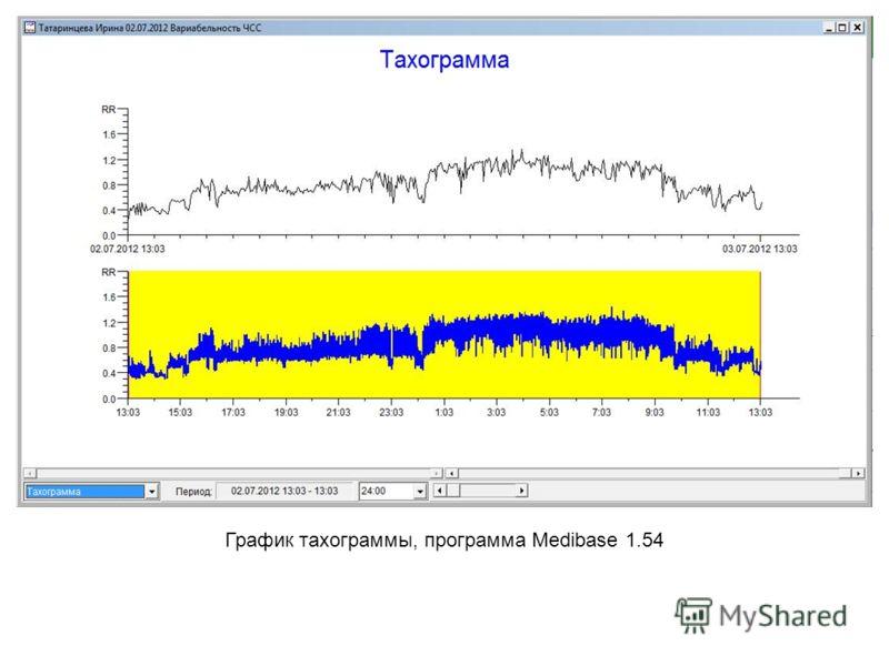 График тахограммы, программа Medibase 1.54