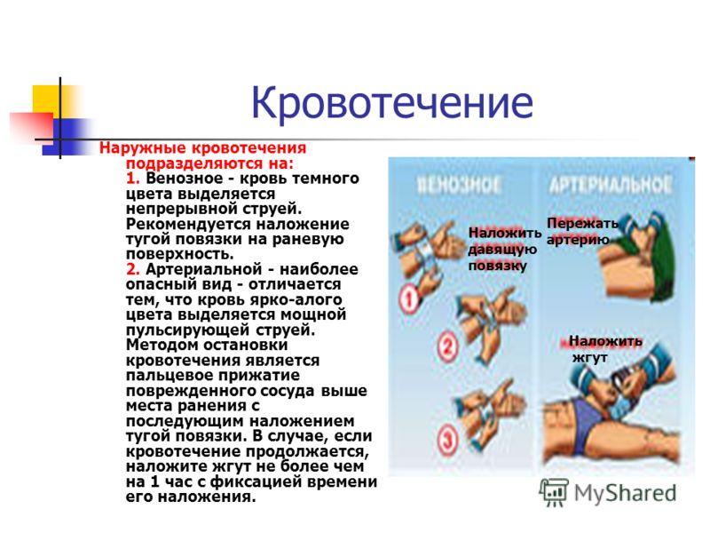 Кровотечение Наружные кровотечения подразделяются на: 1. Венозное - кровь темного цвета выделяется непрерывной струей. Рекомендуется наложение тугой повязки на раневую поверхность. 2. Артериальной - наиболее опасный вид - отличается тем, что кровь яр