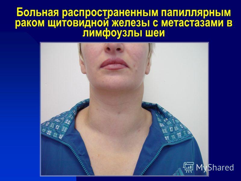 Больная распространенным папиллярным раком щитовидной железы с метастазами в лимфоузлы шеи