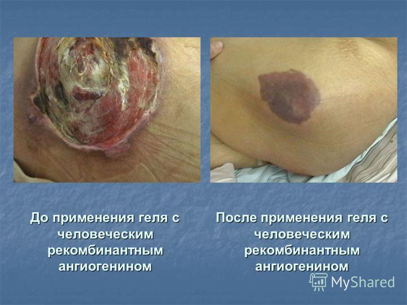 До применения геля с человеческим рекомбинантным ангиогенином После применения геля с человеческим рекомбинантным ангиогенином