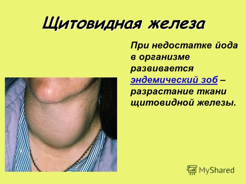 Щитовидная железа При недостатке йода в организме развивается эндемический зоб – разрастание ткани щитовидной железы.