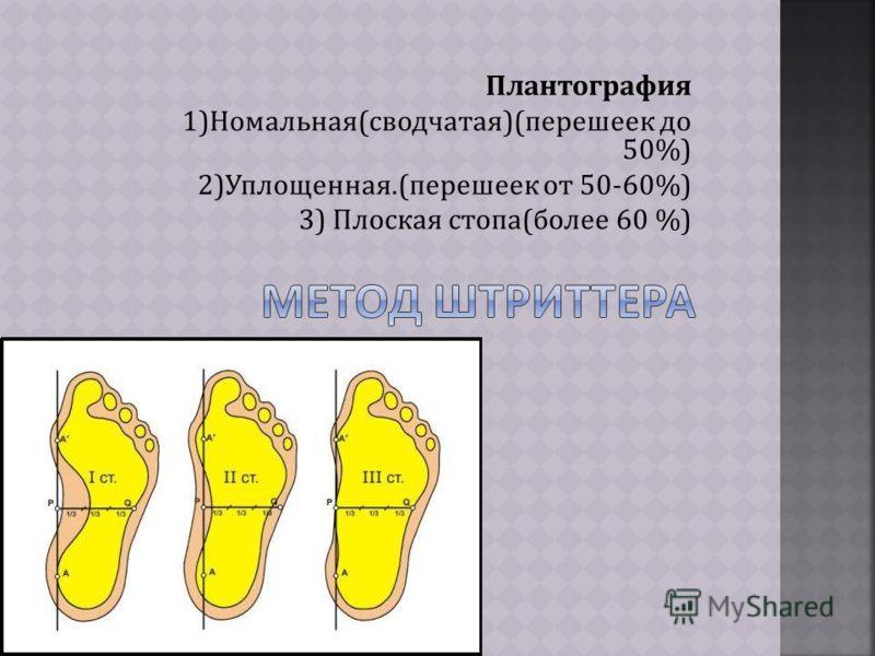 Плантография 1)Номальная(сводчатая)(перешеек до 50%) 2)Уплощенная.(перешеек от 50-60%) 3) Плоская стопа(более 60 %)