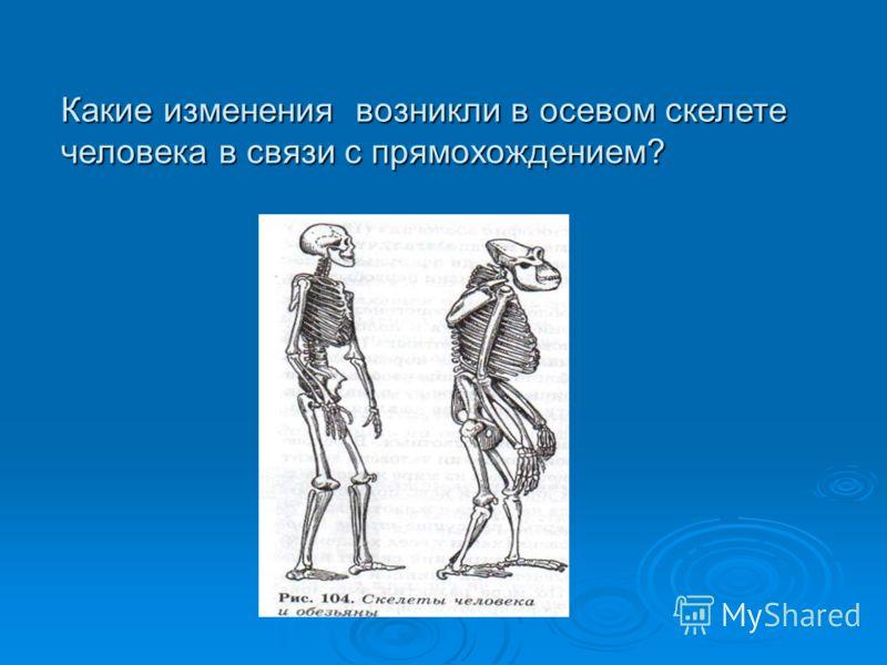 Какие изменения возникли в осевом скелете человека в связи с прямохождением?