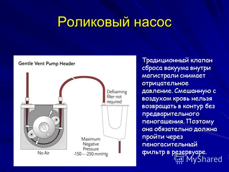 Роликовый насос Традиционный клапан сброса вакуума внутри магистрали снимает отрицательное давление. Смешанную с воздухом кровь нельзя возвращать в контур без предварительного пеногашения. Поэтому она обязательно должна пройти через пеногасительный ф