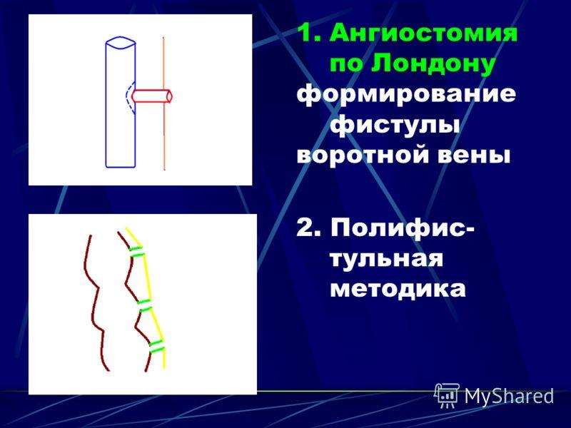 1.Ангиостомия по Лондону формирование фистулы воротной вены 2. Полифис- тульная методика