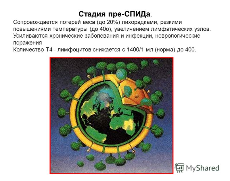 Стадия пре-СПИДа. Сопровождается потерей веса (до 20%) лихорадками, резкими повышениями температуры (до 40о), увеличением лимфатических узлов. Усиливаются хронические заболевания и инфекции, неврологические поражения Количество Т4 - лимфоцитов снижае