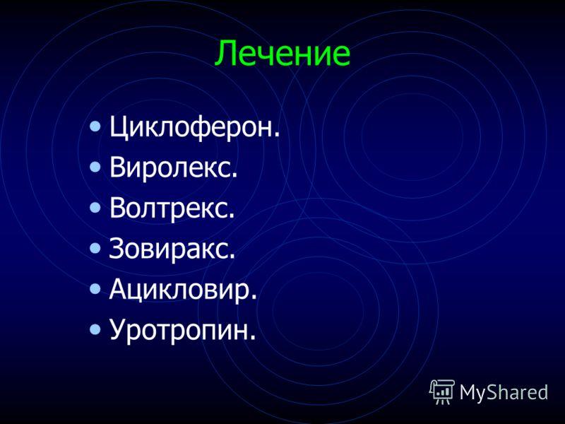 Лечение Циклоферон. Виролекс. Волтрекс. Зовиракс. Ацикловир. Уротропин.