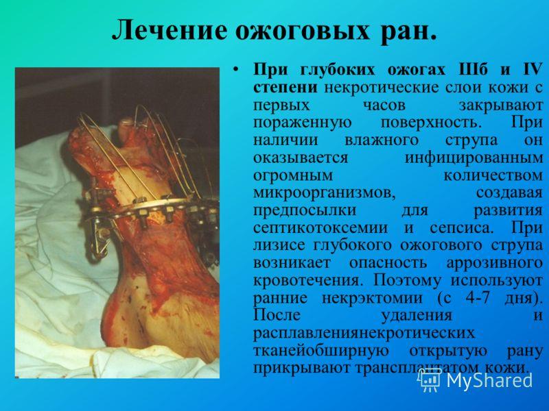 При глубоких ожогах IIIб и IV степени некротические слои кожи с первых часов закрывают пораженную поверхность. При наличии влажного струпа он оказывается инфицированным огромным количеством микроорганизмов, создавая предпосылки для развития септикото
