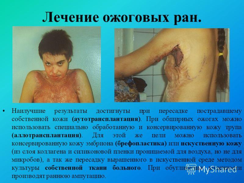 Наилучшие результаты достигнуты при пересадке пострадавшему собственной кожи (аутотрансплантация). При обширных ожогах можно использовать специально обработанную и консервированную кожу трупа (аллотрансплантация). Для этой же цели можно использовать