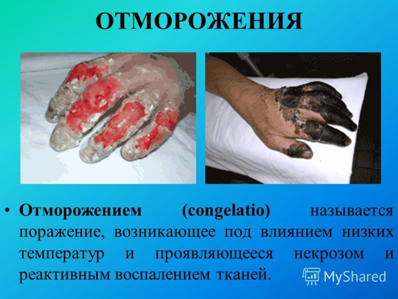 ОТМОРОЖЕНИЯ Отморожением (congelatio) называется поражение, возникающее под влиянием низких температур и проявляющееся некрозом и реактивным воспалением тканей.