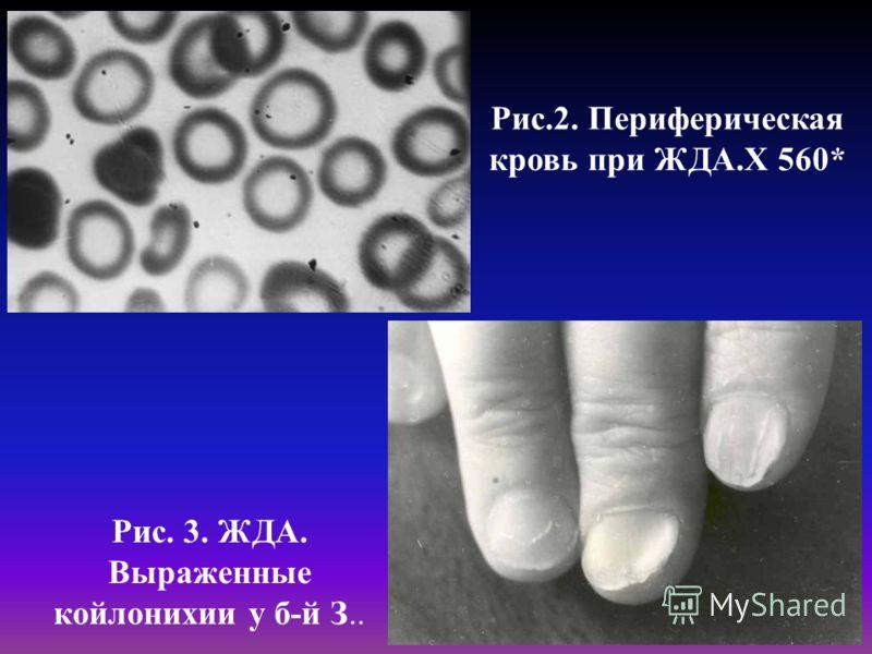 Рис.2. Периферическая кровь при ЖДА.Х 560* Рис. 3. ЖДА. Выраженные койлонихии у б-й З..